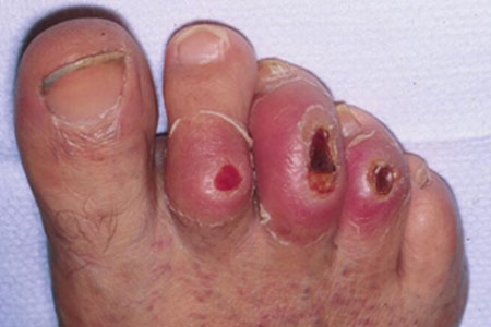 diabetic foot ulcers - footcare treatment options