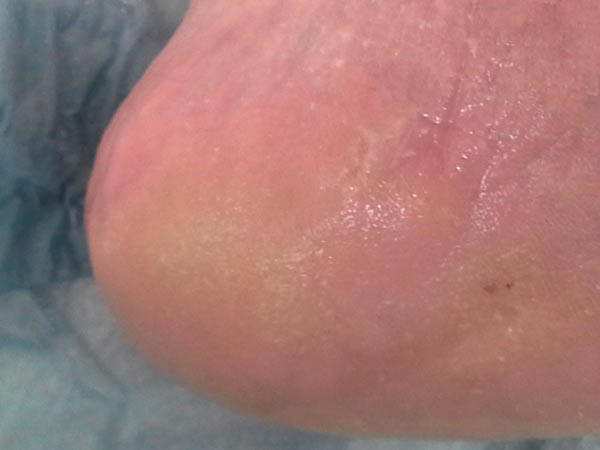 hardskin removed from heel by peterborough chiropodist